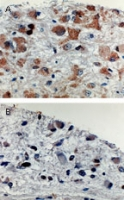 APAF1 / APAF-1 Antibody - Formalin-fixed, paraffin-embedded tissue sections of human brain tumors stained for Apaf 1 expression using APAF1 / APAF-1 at 1:2000. A. Gemistocytoma (grade II). B. Anaplastic glioma. A high level of Apaf 1was observed in the gemistocytoma whereas a low level was seen in the more malignant anaplastic glioma. Hematoxylin-Eos in counterstain.
