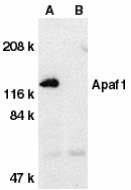 APAF1 / APAF-1 Antibody - Western blot of Apaf1 in human heart tissue lysate with Apaf1 antibody at 1 ug/ml dilution in the absence (A) or presence (B) of blocking peptide.