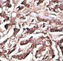 Formalin-fixed and paraffin-embedded human cancer tissue reacted with the primary antibody, which was peroxidase-conjugated to the secondary antibody, followed by DAB staining. This data demonstrates the use of this antibody for immunohistochemistry; clinical relevance has not been evaluated. BC = breast carcinoma; HC = hepatocarcinoma.
