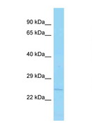 APH1B Antibody - APH1B antibody Western blot of 1 Cell lysate. Antibody concentration 1 ug/ml.  This image was taken for the unconjugated form of this product. Other forms have not been tested.