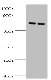 APLP1 / APLP-1 Antibody - Western blot All lanes: Amyloid-like protein 1 antibody at 6µg/ml Lane 1: Mouse brain tissue Lane 2: A549 whole cell lysate Secondary Goat polyclonal to rabbit IgG at 1/10000 dilution Predicted band size: 72 kDa Observed band size: 72 kDa