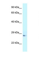 APOA1 / Apolipoprotein A 1 Antibody - APOA1 / APOAI antibody Western blot of Rat Muscle lysate. Antibody concentration 1 ug/ml.  This image was taken for the unconjugated form of this product. Other forms have not been tested.