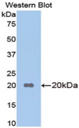 Western blot of recombinant Apolipoprotein B / APOB.  This image was taken for the unconjugated form of this product. Other forms have not been tested.