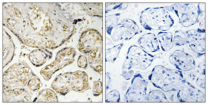 APOBEC3D + APOBEC3F Antibody - Immunohistochemistry analysis of paraffin-embedded human placenta tissue, using APOBEC3D/F Antibody. The picture on the right is blocked with the synthesized peptide.