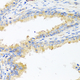 Immunohistochemistry of formalin-fixed paraffin-embedded (FFPE) human prostate using ApoE antibody at dilution of 1:100 (40x magnification).
