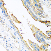 Immunohistochemistry of paraffin-embedded mouse lung using ApoE antibodyat dilution of 1:100 (40x lens).
