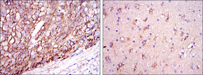 IHC of paraffin-embedded liver cancer tissues (left) and brain tissues (right) using ApoE mouse monoclonal antibody with DAB staining.