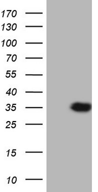 HEK293T cells were transfected with the pCMV6-ENTRY control (Left lane) or pCMV6-ENTRY APOE (Right lane) cDNA for 48 hrs and lysed. Equivalent amounts of cell lysates (5 ug per lane) were separated by SDS-PAGE and immunoblotted with anti-APOE.