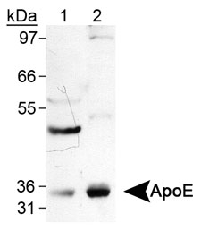 Detection of ApeE with APOE / Apolipoprotein E Antibody. Lane 1, human liver lysates. Lane 2, human brain lysates. This image was taken for the unconjugated form of this product. Other forms have not been tested.