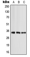 Western blot analysis of Apolipoprotein E expression in MCF7 (A); mouse liver (B); rat liver (C) whole cell lysates.