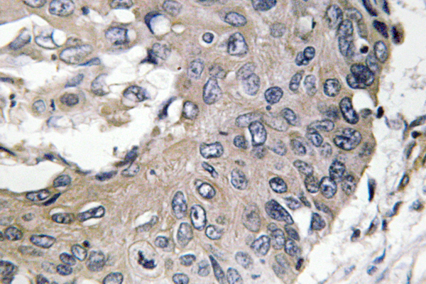 IHC of ApoE (M86) pAb in paraffin-embedded human lung carcinoma tissue.