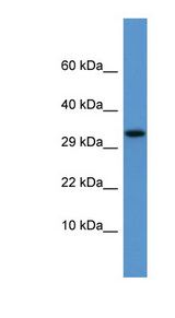 APOF / Apolipoprotein F antibody Western blot of Rat Kidney lysate. This image was taken for the unconjugated form of this product. Other forms have not been tested.