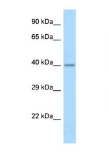 APOL4 / Apolipoprotein L 4 antibody Western blot of Fetal Brain lysate. Antibody concentration 1 ug/ml.  This image was taken for the unconjugated form of this product. Other forms have not been tested.