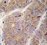 Apolipoprotein A-II Antibody - Formalin-fixed and paraffin-embedded human hepatocarcinoma tissue reacted with APOA2 antibody , which was peroxidase-conjugated to the secondary antibody, followed by DAB staining. This data demonstrates the use of this antibody for immunohistochemistry; clinical relevance has not been evaluated.