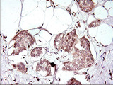 IHC of paraffin-embedded Adenocarcinoma of Human breast tissue using anti-APOA5 mouse monoclonal antibody. (Heat-induced epitope retrieval by 1 mM EDTA in 10mM Tris, pH8.5, 120°C for 3min).