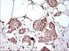 Apolipoprotein A-V Antibody - IHC of paraffin-embedded Adenocarcinoma of Human breast tissue using anti-APOA5 mouse monoclonal antibody. (Heat-induced epitope retrieval by 1 mM EDTA in 10mM Tris, pH8.5, 120°C for 3min).