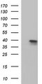 HEK293T cells were transfected with the pCMV6-ENTRY control (Left lane) or pCMV6-ENTRY APOA5 (Right lane) cDNA for 48 hrs and lysed. Equivalent amounts of cell lysates (5 ug per lane) were separated by SDS-PAGE and immunoblotted with anti-APOA5.