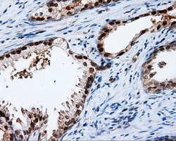 IHC of paraffin-embedded prostate tissue using anti-APP mouse monoclonal antibody. (Dilution 1:50).