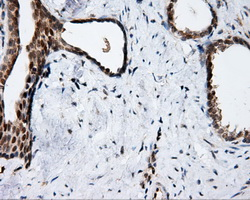 IHC of paraffin-embedded Carcinoma of prostate tissue using anti-APP mouse monoclonal antibody. (Dilution 1:50).