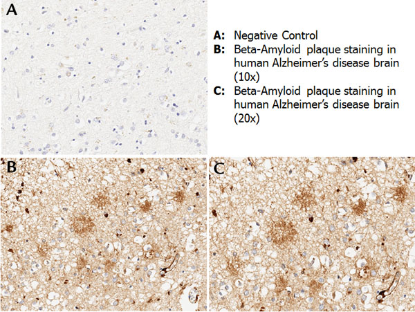 APP / Beta Amyloid Precursor Antibody - Immunohistochemistry with anti-beta amyloid antibody showing amyloid beta plaque staining in human Alzheimer's disease brain at 10x and 20x (B & C). Staining was performed on Leica Bond system using the standard protocol. Formalin fixed/paraffin embedded tissue sections were subjected to antigen retrieval with E1 (Leica Microsystems) retrieval solution for 20 min and then incubated with rabbit anti-beta amyloid antibody 600-401-253 at 1:100 dilution for 60 minutes. Biotinylated Anti-rabbit secondary antibody was used at 1:200 dilution to detect primary antibody. The reaction was developed using streptavidin-HRP conjugated compact polymer system and visualized with chromogen substrate, 3'3-diamino-benzidine substrate (DAB). The sections were then counterstained with hematoxylin to detect cell nuclei.