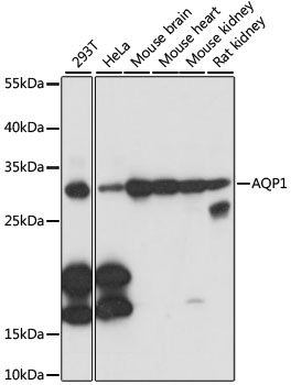 AQP1 / Aquaporin 1 Antibody - Western blot analysis of extracts of various cell lines, using AQP1 antibody at 1:1000 dilution. The secondary antibody used was an HRP Goat Anti-Rabbit IgG (H+L) at 1:10000 dilution. Lysates were loaded 25ug per lane and 3% nonfat dry milk in TBST was used for blocking. An ECL Kit was used for detection and the exposure time was 1s.