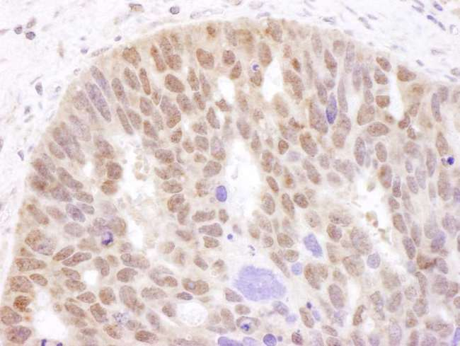 AR / Androgen Receptor Antibody - Detection of Human Androgen Receptor by Immunohistochemistry. Sample: FFPE section of human ovarian carcinoma. Antibody: Affinity purified rabbit anti-Androgen Receptor used at a dilution of 1:1000 (1 ug/ml). Detection: DAB.