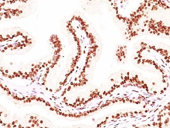 AR / Androgen Receptor Antibody - Formalin-fixed, paraffin-embedded human prostate carcinoma stained with Androgen Receptor antibody (AR441 + DHTR/882).  This image was taken for the unmodified form of this product. Other forms have not been tested.