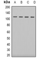 AR / Androgen Receptor Antibody - Western blot analysis of Androgen Receptor expression in HEK293T (A); LOVO (B); NIH3T3 (C); PC12 (D) whole cell lysates.