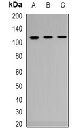 AR / Androgen Receptor Antibody - Western blot analysis of Androgen Receptor expression in HEK293T (A); NIH3T3 (B); mouse liver (C) whole cell lysates.