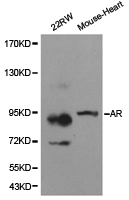 AR / Androgen Receptor Antibody - Western blot of extracts of various cell lines, using AR antibody.