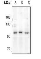 AR / Androgen Receptor Antibody - Western blot analysis of Androgen Receptor expression in Hela (A), MCF7 (B), rat testis (C) whole cell lysates.