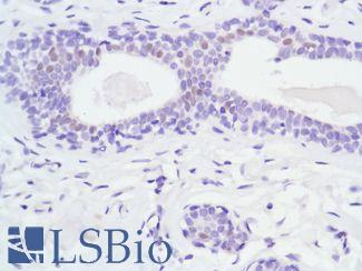 Immunohistochemistry of Human Breast stained with anti-Androgen Receptor (AR) antibody