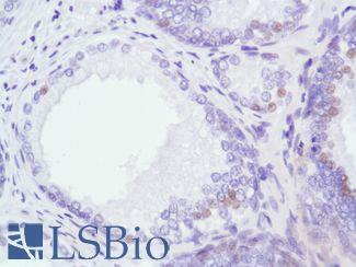 Immunohistochemistry of Human Prostate stained with anti-Androgen Receptor (AR) antibody