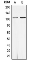 AR / Androgen Receptor Antibody - Western blot analysis of Androgen Receptor (pS650) expression in MCF7 (A); rat heart (B) whole cell lysates.