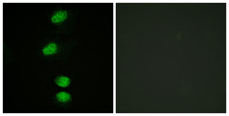 AR / Androgen Receptor Antibody - Immunofluorescence analysis of HeLa cells, using Androgen Receptor (Phospho-Ser94) Antibody. The picture on the right is blocked with the phospho peptide.