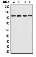 AR / Androgen Receptor Antibody - Western blot analysis of Androgen Receptor (pY363) expression in LNCaP (A); MCF7 UV-treated (B); mouse spleen (C); rat spleen (D) whole cell lysates.