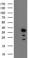 ARA9 / AIP Antibody - HEK293T cells were transfected with the pCMV6-ENTRY control (Left lane) or pCMV6-ENTRY AIP (Right lane) cDNA for 48 hrs and lysed. Equivalent amounts of cell lysates (5 ug per lane) were separated by SDS-PAGE and immunoblotted with anti-AIP.