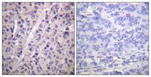 IHC of paraffin-embedded human breast carcinoma, using A-RAF (Phospho-Tyr302) Antibody. The sample on the right was incubated with synthetic peptide.