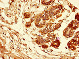 Immunohistochemistry of paraffin-embedded human breast cancer tissue using CSB-PA11339A0Rb at dilution of 1:100