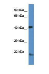 ARF Antibody - ARF4 antibody Western blot of Mouse Brain lysate. Antibody concentration 1 ug/ml. This image was taken for the unconjugated form of this product. Other forms have not been tested.