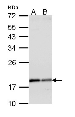 Sample (30 ug of whole cell lysate). A: A431. B: H1299. 12% SDS PAGE. ARF1 antibody diluted at 1:1000.