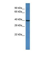 Western blot of Human HeLa. ARFGAP2 antibody dilution 1.0 ug/ml.  This image was taken for the unconjugated form of this product. Other forms have not been tested.