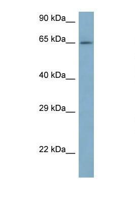 ARFGAP3 antibody LS-C145570 Western blot of 721_B Cell lysate. Antibody concentration 1 ug/ml.  This image was taken for the unconjugated form of this product. Other forms have not been tested.