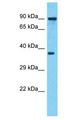 ARFIP1 antibody Western Blot of MDA-MB-435s. Antibody dilution: 1 ug/ml.  This image was taken for the unconjugated form of this product. Other forms have not been tested.