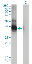 Western blot of LDLRAP1 expression in transfected 293T cell line by LDLRAP1 monoclonal antibody, clone 4G4-D5.