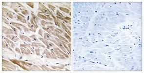 IHC of paraffin-embedded human heart tissue, using RHG1 Antibody. The sample on the right was incubated with synthetic peptide.