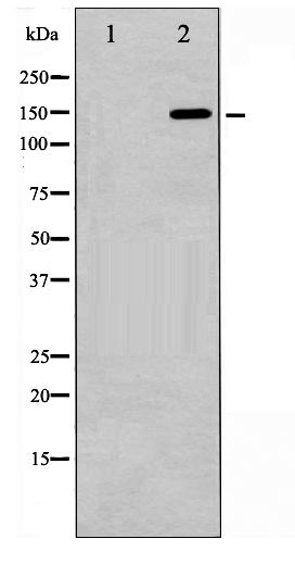 Western blot of GRF-1 phosphorylation expression in EGF treated 293 whole cell lysates,The lane on the left is treated with the antigen-specific peptide.