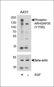 Western blot of lysates from A431 cell line, untreated or treated with EGF, 100ng/ml with Phospho-HUMAN-ARHGAP35 (Y1105) (upper) or Beta-actin (lower).