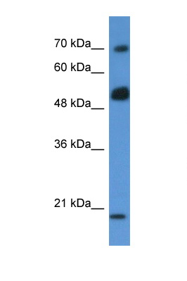ARHGAP36 / FLJ30058 antibody LS-C102464 Western blot of MCF7 Cell lysate. Antibody concentration 1 ug/ml.  This image was taken for the unconjugated form of this product. Other forms have not been tested.
