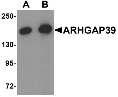 ARHGAP39 Antibody - Western blot analysis of ARHGAP39 in A20 cell lysate with ARHGAP39 antibody at (A) 1 and (B) 2 ug/ml